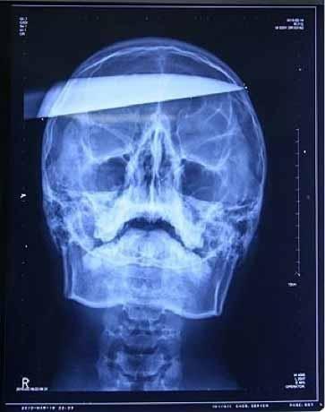 Поначалу хирурги приняли его за шутника, решившего напугать пациентов приемного отделения. Ну в самом деле, как можн .... - Изображение 1