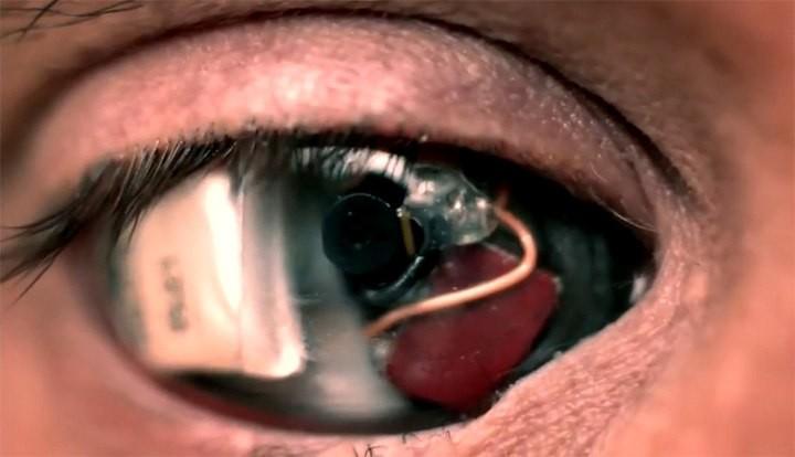 В США слепому мужчине восстановили зрение с помощью бионического глаза. - Изображение 1